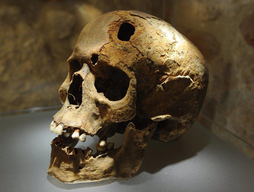 Stock Photo: 4409-63090 MUSEO SUBTERRANEO DE CRACOVIA (PODZIEMIA RYNKU). En él se exiben los restos arqueológicos medievales de la zona comercial de la ciudad, a 4 metros bajo la Plaza del Mercado (Rynke Glowny). Detalle de un cráneo humano, con una trepanación realizada a un hombre de 40 años de edad. S. XI. Se cree que el tipo de trepanación fue de tipo terapeutica Por la cicatrizaciñon del hueso, parece que el paciente vivió varias semanas tras la operación. Cracovia. Polonia. Europa.