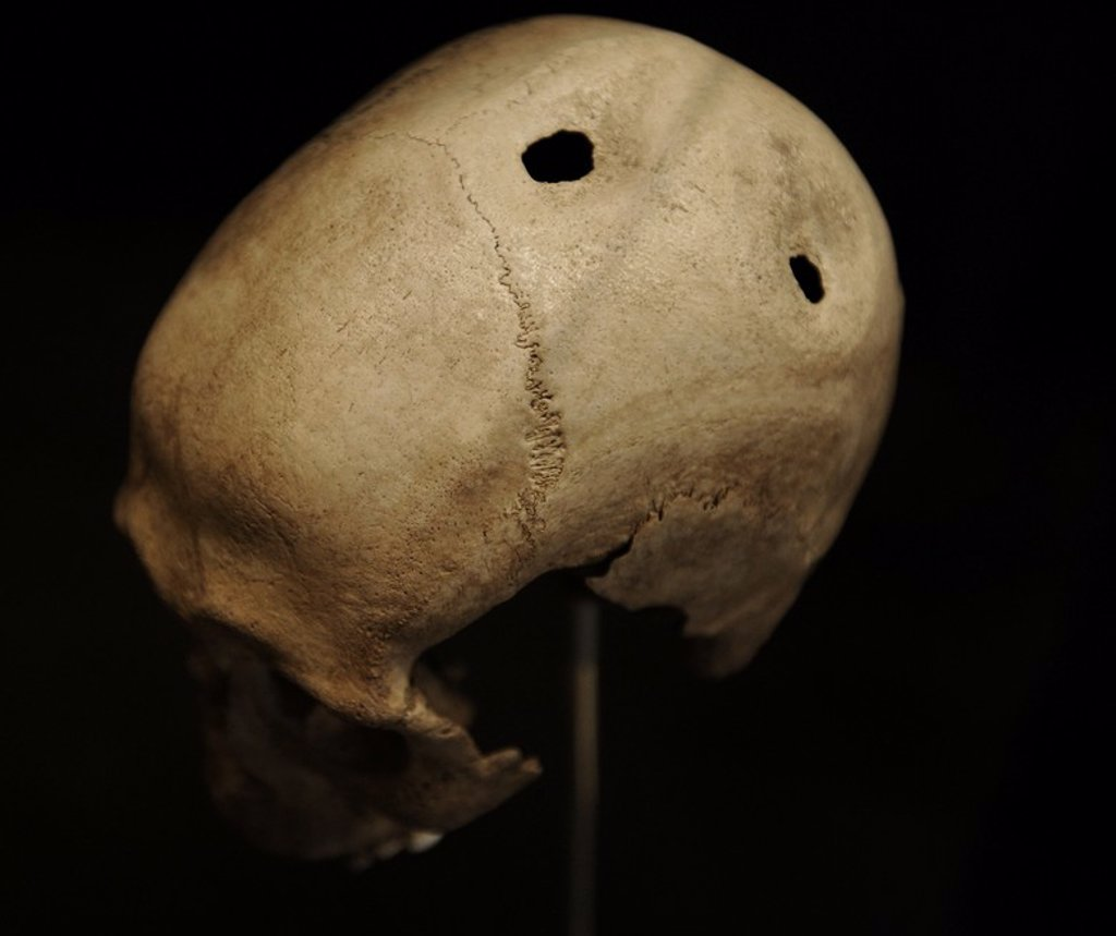 Stock Photo: 4409-72510 Trepanned skull of a man. 21-35 years old. 3500-3400 BC. From Dojringe Mose, Zealand. National Museum of Denmark. Copenhagen. Denmark.