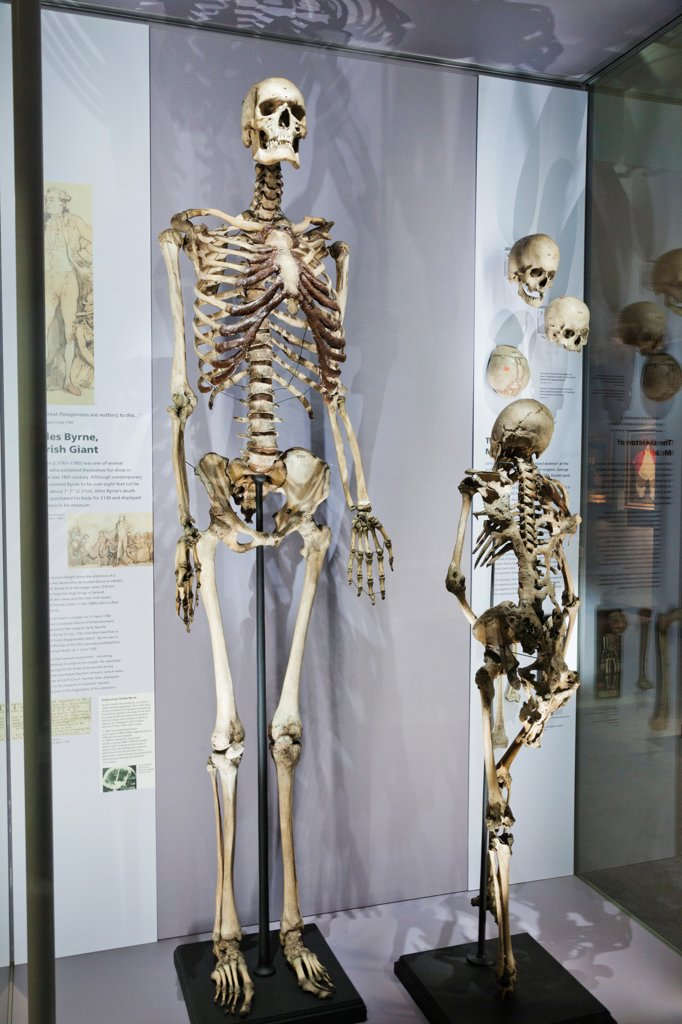 Stock Photo: 442-38002 England, London, Royal College of Surgeons, Hunterian Museum, Display of Skeletons of Charles Byrne Irish Giant and Mr Jeffs