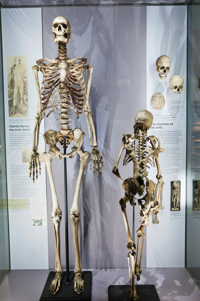 England, London, Royal College of Surgeons, Hunterian Museum, Display of Skeletons of Charles Byrne the Irish Giant and Mr Jeffs : Stock Photo