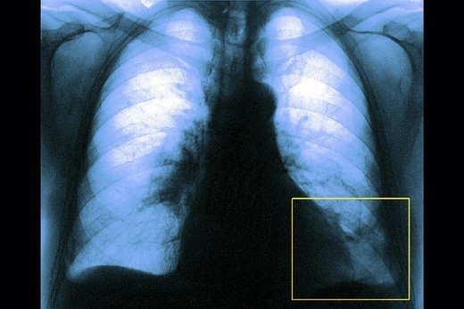 PULMONARY EMBOLISM RADIO. PULMONARY EMBOLISM RADIO Blood clot at lung level, at the left lower lobe. X-ray, frontal view. : Stock Photo