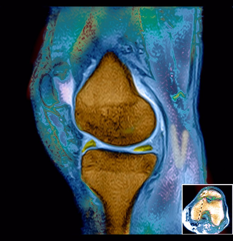 Stock Photo: 824-117778 DAMAGED MENISCUS, MRI. MRI scan of the left knee. The patient underwent arthroscopy to remove part of the damaged meniscus.