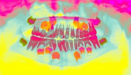 DENTAL  X-RAY EXAMINATION. DENTAL  X-RAY EXAMINATION   Dental panoramic. Child. : Stock Photo