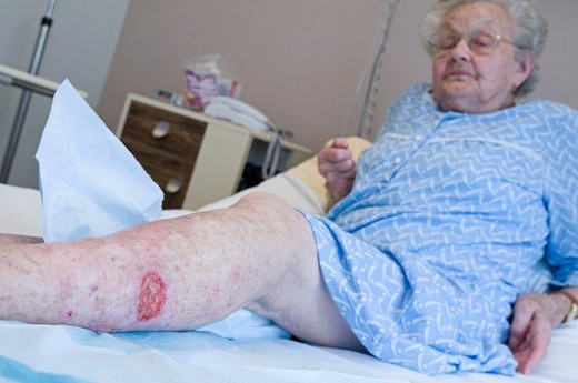 LEG ULCERS. Photo essay at the department of dermatology at the Bocage hospital, University Hopital of Dijon, France. Here, a patient with an ulcer on the leg : Stock Photo