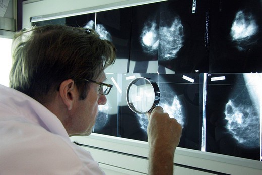 RADIOLOGIST. RADIOLOGIST Radiography office. Breast x_rays. The radiologist is searching signs of cancer thanks to a magnifying glass to dectect, for example, microcalcifications. : Stock Photo