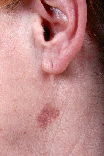 BASAL CELL CARCINOMA : Stock Photo