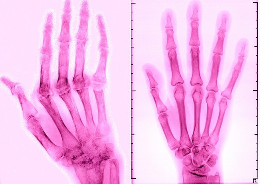 Stock Photo: 824-18064 RHEUMATOID ARTHRITIS, X-RAY. RHEUMATOID ARTHRITIS, X-RAY Rhumatoid arthritis. Here the condition has caused ankylosis and bone deformation of the right hand. Mainly women are affected by this disease which destroys cartilage, bone and ligaments. X-ray of right hand, dorsal view.