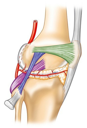 KNEE LIGAMENT, DRAWING. Knee ligaments. ON the right in white, the patellar ligament, in green, the lateral collateral ligament, in blue, the external lateral ligament and in purple the cruciate ligament. : Stock Photo