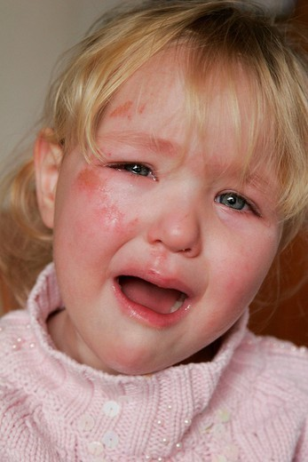 WOUND, CHILD. WOUND, CHILD Model. Girl of 2 and a half years old with a scratch on the face. : Stock Photo
