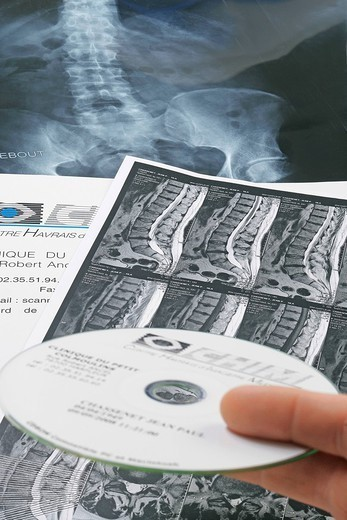 SPINAL COLUMN, MRI. MRI of the dorsal and lumbar vertebrae of a 50_year_old man. Presence of a slipped disc at the level of two lumbar vertebrae. : Stock Photo