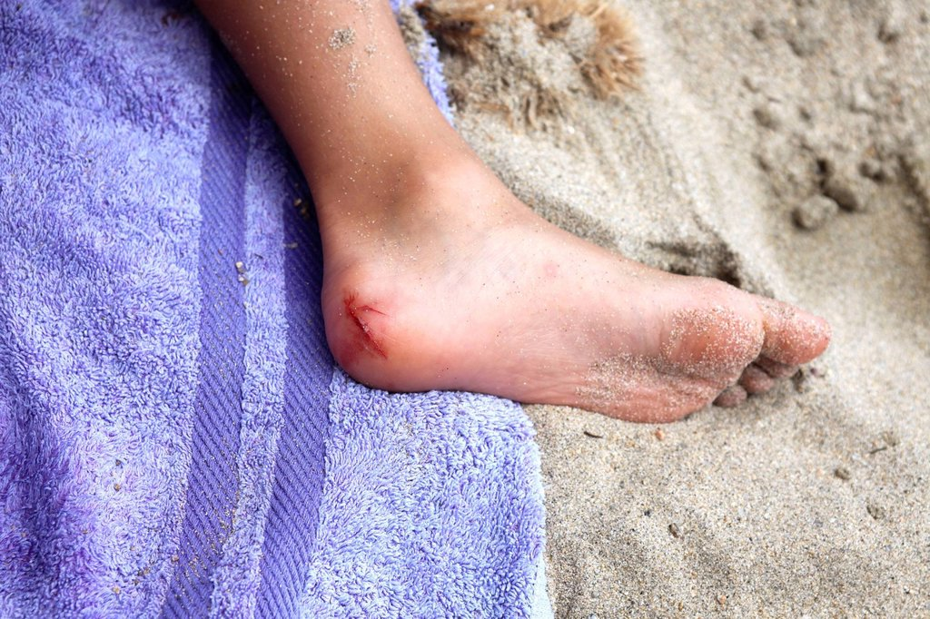 Stock Photo: 824-34049 OPEN WOUND