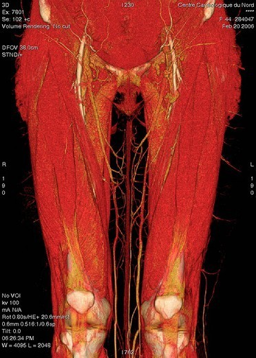 Stock Photo: 824-36049 LOWER LIMB, 3D SCAN. Angiography scanner 3D. Thresholding at the level of the muscles and superficial vascularization saphenous veins. The musculature of the thigh is composed of the quadriceps among which the muscles vastus medialis and vastus lateralis, located at each side of the thigh, and the rectus femoris muscle, above the rotula and the musculus sartorius oblique across the thigh. see. images 1674706, 1674806, 1674906, 1675006, 1675106, 1675206, 1675306, 1675506, 1675706 and 1675806 for