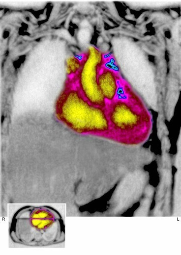 HEART, MRI. Normal human heart visualized by a frotnal MRI of the thorax. : Stock Photo