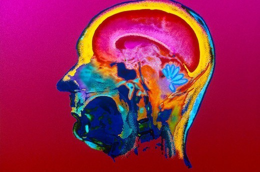 BRAIN, SCAN. BRAIN, SCAN The brain is divided into two hemispheres bridged by a mass of nerve fibers, the corpus callosum. The brain as a whole (encephalon) is composed of these areas along with the brain stem (the prolongation of the spinal cord), and the cerebellum (a sort of branch circuit located in the posterior region of the skull). Deep grooves separate the brain into lobes designated by the names of the overlying skull bones: frontal, parietal, temporal, occipital. Seen here, a normal : Stock Photo
