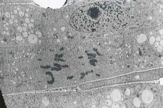 Stock Photo: 824-40789 MITOSIS. MITOSIS Meristem of an onion root composed of undifferentiated  embryonic cells. Miito Mitosis sis (cell division) is active in the meristem allowing the root to lengthen. Chromosomes (*) in the mother cell are duplicated during mitosis leading to the formation of two daughter cells with the same chromosomes. There are four phases of mitosis: prophase (chromosome contraction and duplication), metaphase (arrangement of the chromosomes along the equatorial plane of the spindle), anapha
