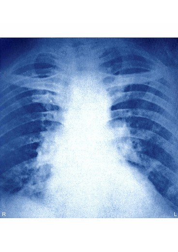 Stock Photo: 824-41811 PULMONARY EMBOLISM, X_RAY. PULMONARY EMBOLISM, X_RAY Pulmonary embolisms by bilateral thrombuses _ Thoracic x_ray is the brutal obstruction by the thrombus of the pulmonary artery or one of its branches here, of the two lungs. The thrombus most often arises from a deep vein of the limbs or the pelvis deep vein thrombosis. Deep vein thrombosis is the formation of thrombus at the level of the leg deep veins. It is more frequent among persons who remain sitted long hours at work. It is also the pat