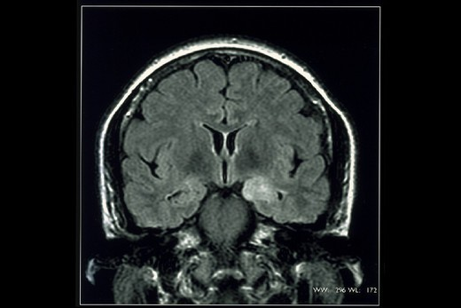 Stock Photo: 824-42397 EPILEPSY, MRI. EPILEPSY, MRI Department of morphological and functional imaging, led by Professor Fredy, at the Pitié Salpêtrière Hospital in Paris, France. FLAIR, frontal cut-away view.  Left temporal internal space to be biopsied (cortical dysplasia or astrocytoma). Pharmacoresistant partial epilepsy.