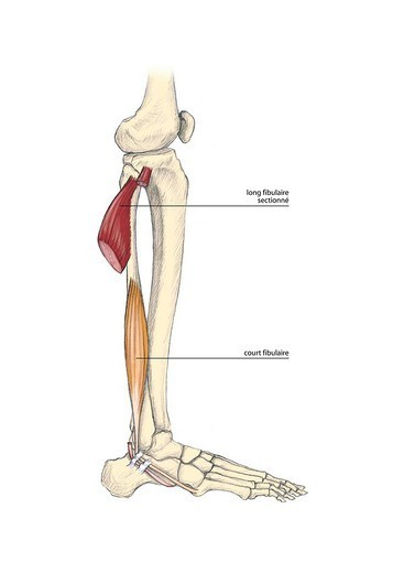 LEG, DRAWING : Stock Photo