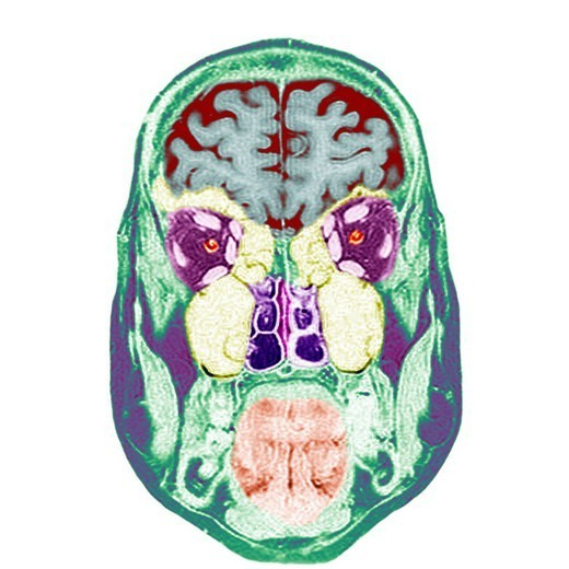 HEAD, MRI. Frontal section. Cf. image 0211206 for the numbers. 1.Brain. 2.Eyeballs. 3.Optic nerves. 4.Oculo_motor muscles superior right, inferior right, lateral right called external right, medial right called internal right, levator palpebrae superioris mus : Stock Photo