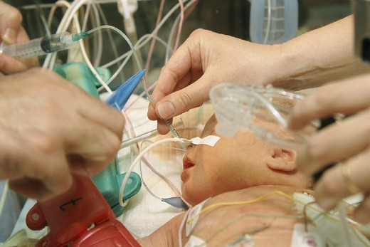 RESUSCITATION, INFANT. RESUSCITATION, INFANT Photo essay from hospital. Pediatric physical therapist treating a respiratory distress.   Here, aspiration (suction) of the baby´s nose and pharynx to clear airway obstruction. Bicêtre Hospital, in the French region of Ile-de-France. : Stock Photo