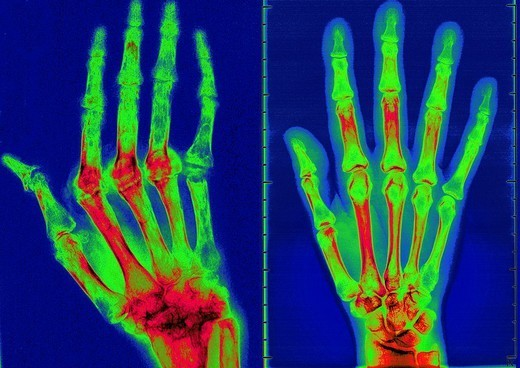 Stock Photo: 824-50824 RHEUMATOID ARTHRITIS, X-RAY. RHEUMATOID ARTHRITIS, X-RAY Rhumatoid arthritis. Here the condition has caused ankylosis and bone deformation of the right hand. Mainly women are affected by this disease which destroys cartilage, bone and ligaments. X-ray of right hand, dorsal view.