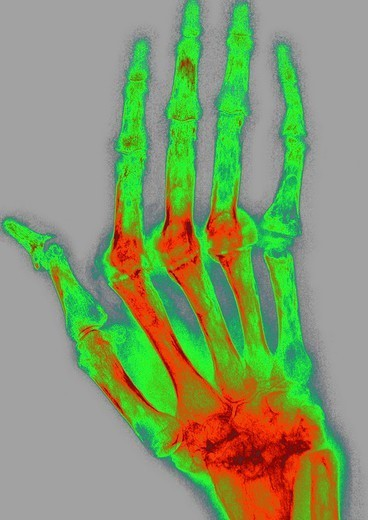 Stock Photo: 824-52583 RHEUMATOID ARTHRITIS, X-RAY. RHEUMATOID ARTHRITIS, X-RAY Rhumatoid arthritis. Here the condition has caused ankylosis and bone deformation of the right hand. Mainly women are affected by this disease which destroys cartilage, bone and ligaments. X-ray of right hand, dorsal view.