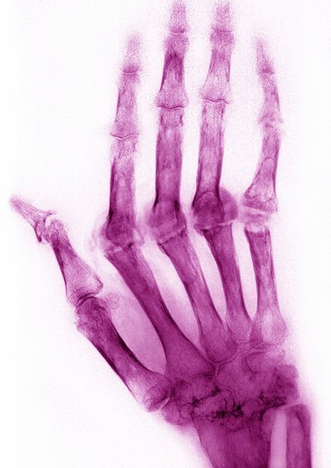 Stock Photo: 824-53146 RHEUMATOID ARTHRITIS, X-RAY. RHEUMATOID ARTHRITIS, X-RAY Rhumatoid arthritis. Here the condition has caused ankylosis and bone deformation of the right hand. Mainly women are affected by this disease which destroys cartilage, bone and ligaments. X-ray of right hand, dorsal view.
