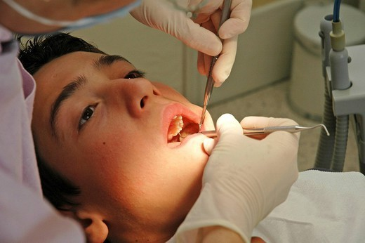 Stock Photo: 824-53152 DENTAL CARE, ADOLESCENT. DENTAL CARE, ADOLESCENT Location of a tooth decay.