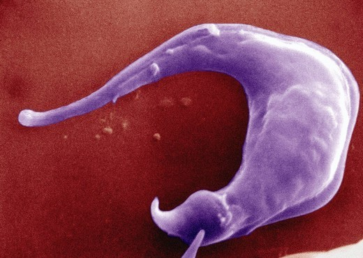 TRYPANOSOMA CRUZI. Trypanosoma cruzi under SEM. Tryptomastigote protozoa. : Stock Photo