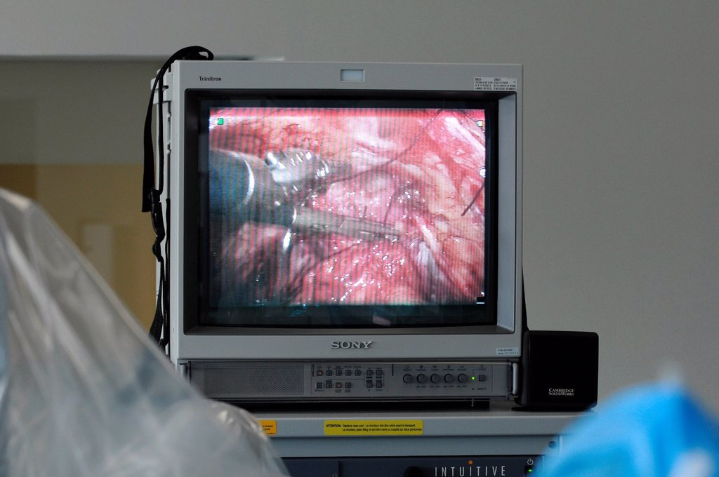 PROSTATE SURGERY. Photo essay at Lyon hospital in France. Department of urology. Prostatectomy. This hospital has a robotic surgical system Da Vinci Surgical System made by Intuitive Surgical designed to facilitate complex surgery using a minimally invasive approach. Monitor screen. : Stock Photo