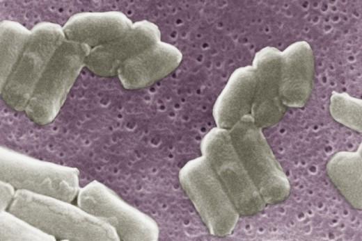 CLOSTRIDIUM PERFRIGENS. CLOSTRIDIUM PERFRIGENS Scan electron micrography. 10 000x. : Stock Photo