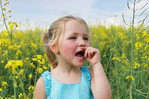 ALLERGY, CHILD. Model. 4_year_old girl in a field of canola. : Stock Photo