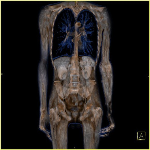 ANATOMY. ANATOMY Entire body, frontal view. 3D CT scan. The icon at the bottom-right indicates the image´s perspective: A : anterior, P : posterior, R : right, L : left, F : foot (viewed from below), H : head (viewed from above). : Stock Photo
