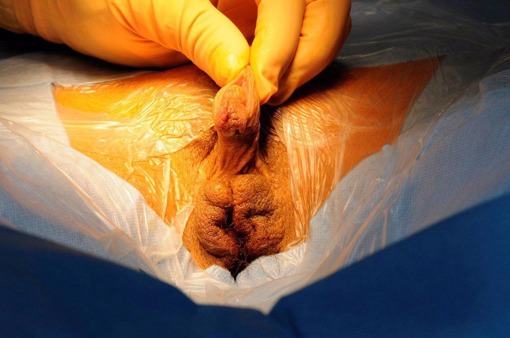 Meatoplasty  Urology  SurgeryPlanet