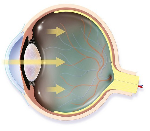 Stock Photo: 824-60984 EYE, DRAWING. EYE, DRAWING The eye. Anatomy of the right eye : horizontal cutaway_view showing the main structures of the eye, including the retina and its vascularization, the lens, the vitreous body, the retina, the optic nerve, the choroid, the sclera. The yellow arrows represent the light that penetrate into the eye.