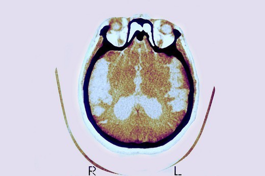 ALZHEIMER´S DISEASE, SCAN. ALZHEIMER´S DISEASE, SCAN Axial cut-away view. Median portion of dilated third ventricle. Symmetrical and rounded dilation of intersections. Sylvian fissure is quite enlarged. : Stock Photo