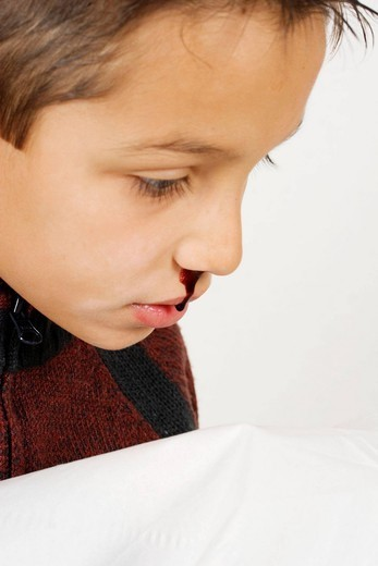 CHILD WITH NOSEBLEED. Model. : Stock Photo