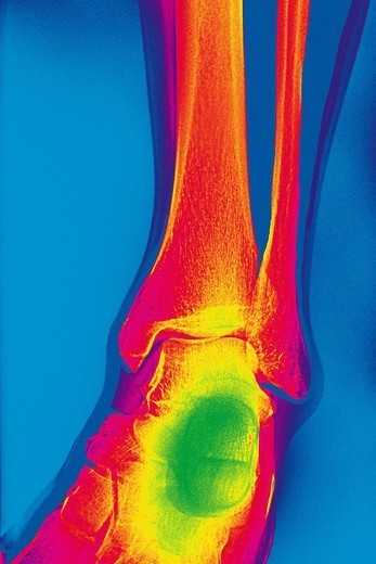 ANKLE, X_RAY : Stock Photo
