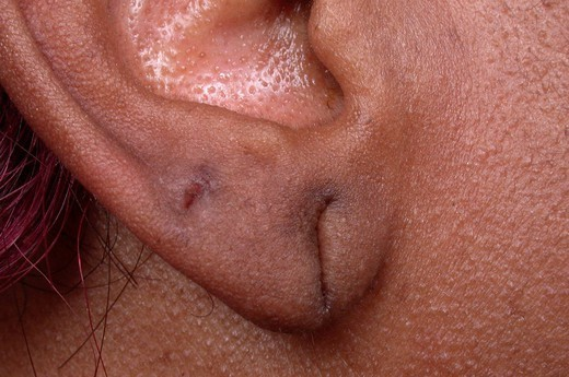 WOUNDED EAR. Wounded auricular lobe. : Stock Photo