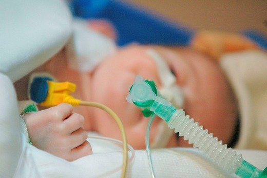 Stock Photo: 824-66404 NEWBORN HOSPITAL PATIENT. Photo essay from the University Hospital of Bordeaux. Cardiologic hospital of Haut_Leveque. Resucitation department. Ventilation using a catheter.