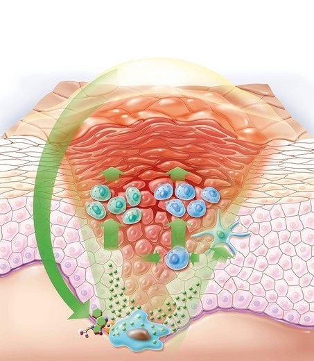 KERATOSIS TREATMENT. Representation of the action of a treating cream on a keratosis. The ointment contains an immunomodulator that will stimulate the production of cytokines Interferon alpha, Interleukins, TNF alpha then triggering an immune response that will enable the : Stock Photo