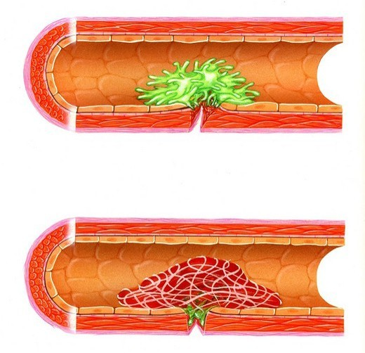 BLOOD COAGULATION. BLOOD COAGULATION Representation of the platelet aggregation platelets represented in green intervening in the process of coagulation. Under the action of the thrombin, the fibrogens are transfomed into en fibrins and reinforce the meshing created by the platelet aggregation. Formation of a thrombus or clot. see. image 0357407 for the beginning of the process. : Stock Photo