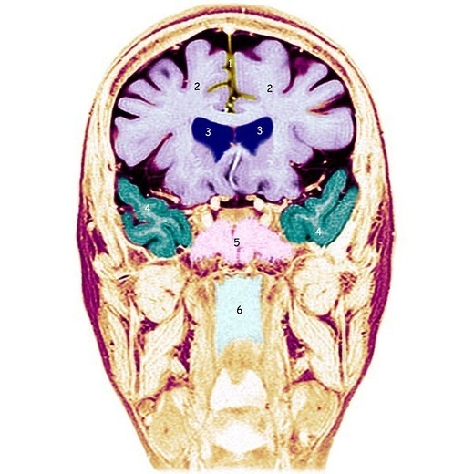 HEAD, MRI. HEAD, MRI Frontal section.  1.Longitudinal fissure of the brain and false brain.  2.Frontal lobes.  3.Frontal horns of the lateral ventricles.  4.Temporal lobes.  5.Sphenoidal sinuses.  6.Rhinopharynx. : Stock Photo