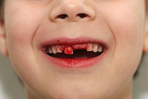 LOSING MILK TEETH. LOSING MILK TEETH Model. 7_year_old boy losing a baby tooth. : Stock Photo