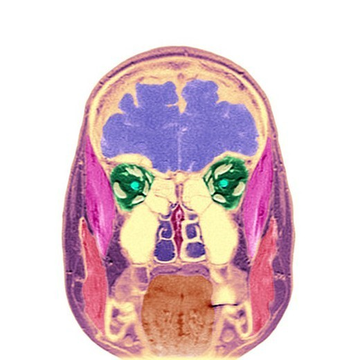 HEAD, MRI. HEAD, MRI Frontal section. (Cf. image 0210906 for the numbers).  1.Brain  2.Temporal muscles  3.Eyeballs  4.Optic nerves  5.Oculo-motor muscles (superior right, inferior right, lateral right called external right, medial right called internal right, levator palpebrae superioris muscle, superior oblique called great oblique, inferior oblique called small oblique).  6.Maxillairy and frontal sinuses.  7.Nasal cavities.  8.Wall of nasal cavities.  9.Masseter muscles.  10.Tongue : Stock Photo