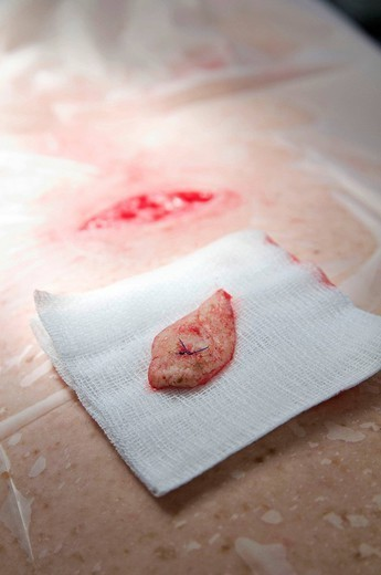 SKIN TUMOR ABLATION. Photo essay at the department of dermatology at the Bocage hospital, University Hopital of Dijon, France. Tapering removal of a small superficial tumor. : Stock Photo