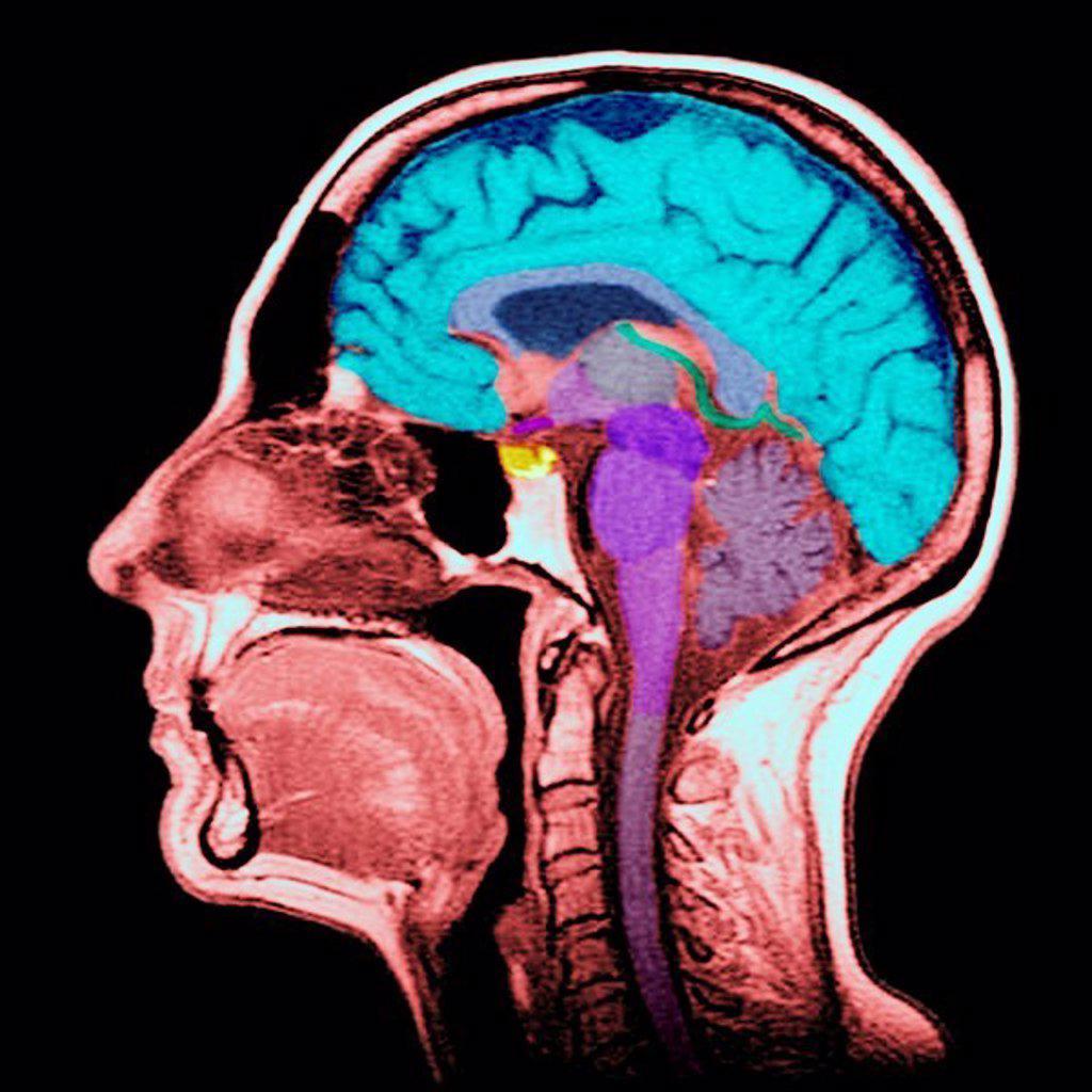 Stock Photo: 824-72136 HEAD, MRI. HEAD, MRI Sagittal section.  (Cf. image 0212106 for the numbers)  1. Brain.  2. Corpus callosum (splenium).  3. Septum lucidum.  4. Thalamus.  5. Mamillary body.  6.Mesencephalon.  7. Pons.  8. Medulla oblongata.  9. Spinal cord.  10. Cerbellum.  11. Frontal sinus.  12. Ethmoid cells.  13. Concha.  14. Sphenoidal sinus.  15. Genioglossus muscle, tongue.  16. Mandible.  17. Rhinopharynx.  18. Oropharynx.  19. Laryngopharynx.  20. Trachea.  21. Soft palate.  22. Bone of the skull.  2