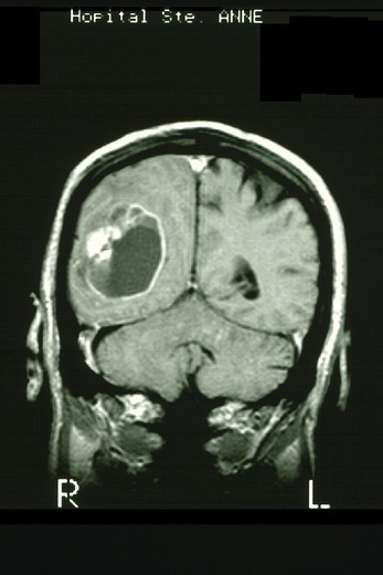 BRAIN CARDIA, MRI. ´BRAIN CARDIA, MRI Department of morphological and functional imaging, led by Professor Fredy, at the Pitié Salpêtrière Hospital in Paris, France.Gadolinium enhanced MRI-T1. Coronal cut-away. Glioblastoma.´ : Stock Photo