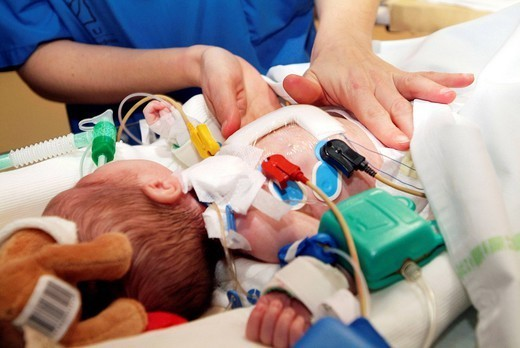 Stock Photo: 824-72574 RESUSCITATION, INFANT. Photo essay from the University Hospital of Bordeaux. Cardiologic hospital of Haut_Leveque. Department of resuscitation. Ventilation after a cardiac surgery. The child has been operated for a transposition of the great vessels isolated ventric
