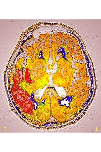 Stock Photo: 824-74699 CEREBROVASCULAR ACCIDENT, SCAN. CEREBROVASCULAR ACCIDENT, SCAN Stroke due to arterial thrombosis in right hemisphere. CT scan of brain, axial view.